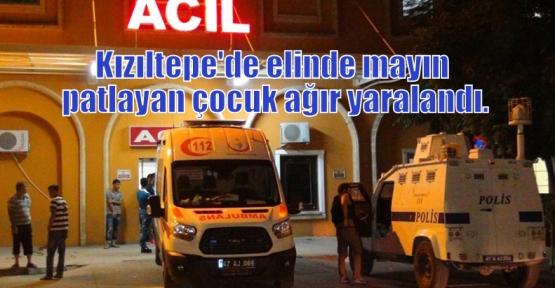 Kızıltepe'de elinde mayın patlayan çocuk ağır yaralandı.